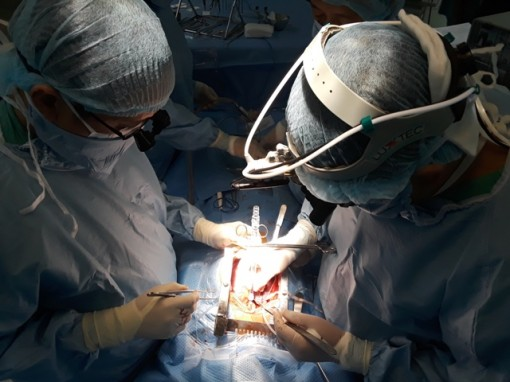 The second trans Viet heart transplant was successfully performed